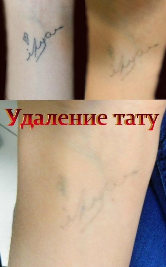 Лазерное удаление татуировок в екатеринбурге цена криолиполиз цена процедуры меди эстетик сочи