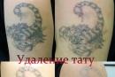 Удаление татуировки на руке лазером